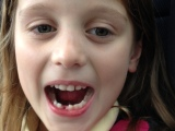 The Big One loses her first tooth –finally!